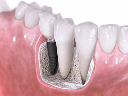 implant-piatra-neamt