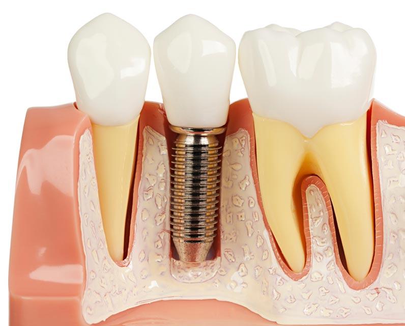 servicii stomatologie in Constanta